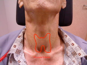 Thyroid Cancerent Clinic